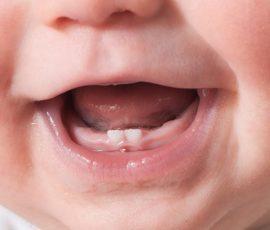Bebeklerde Diş Çıkarma